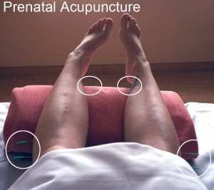 Prenatal Acupuncture - 36 weeks